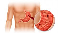 Ulcera allo stomaco
